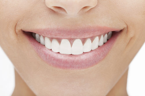 Veneers can improve your smile like the white smile shown